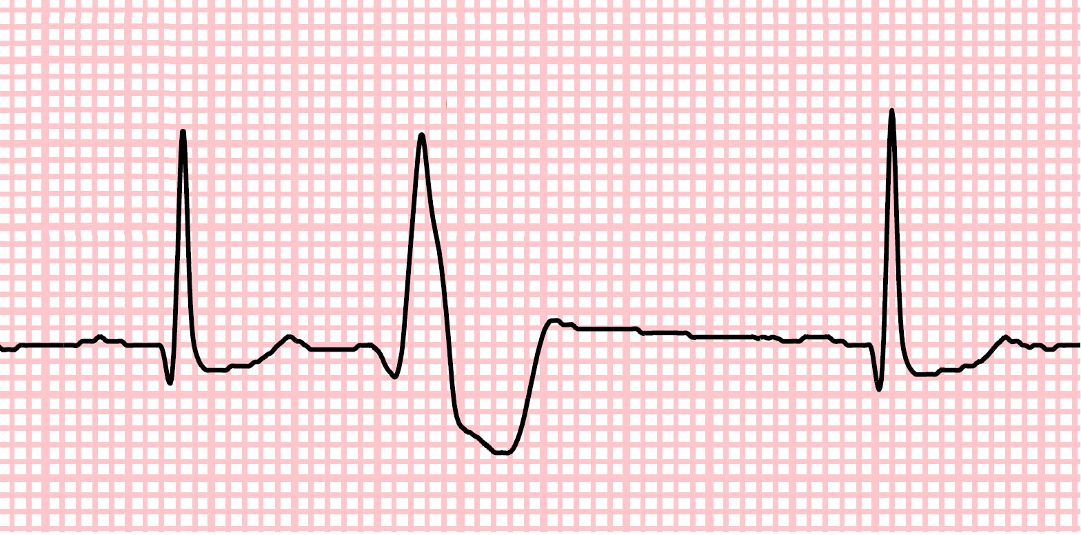 Complejo Ventricular Prematuro detectado con Electrodoctor